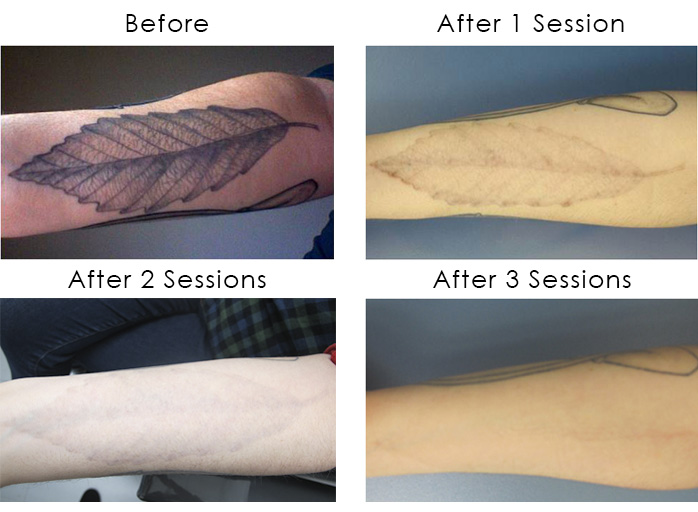 Laser tattoo removal shining light on a flourishing industry for Laser remove tattoo price