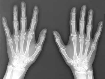 x-ray cameras- medical