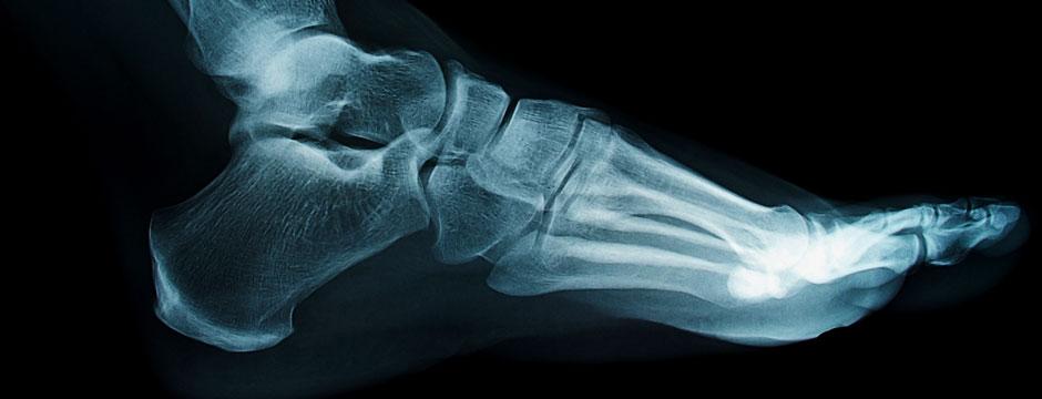 x-ray cameras image