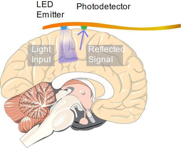 Neural imaging with an implantable ORIS sensor