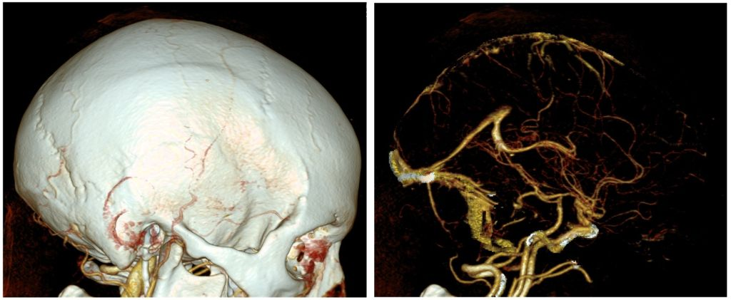 CT scans of the brain. VR is mapping these scans in 3D, instead of viewing on a printout or screen.