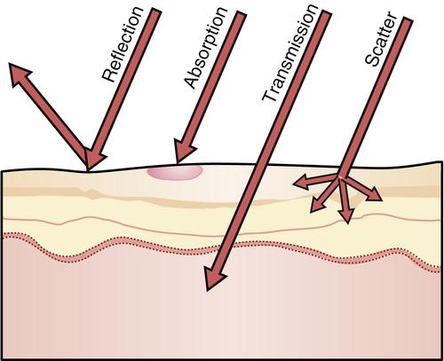 Laser tissue transmission characteristics