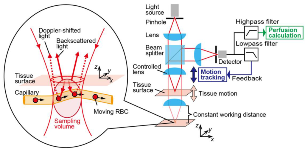 Laser doppler flowmetry setup