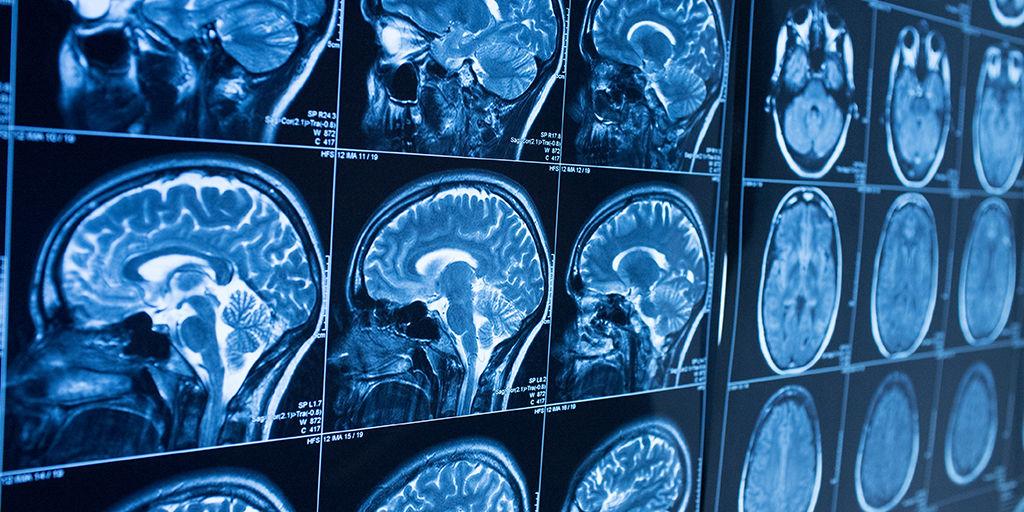 near-IR stroke diagnosis