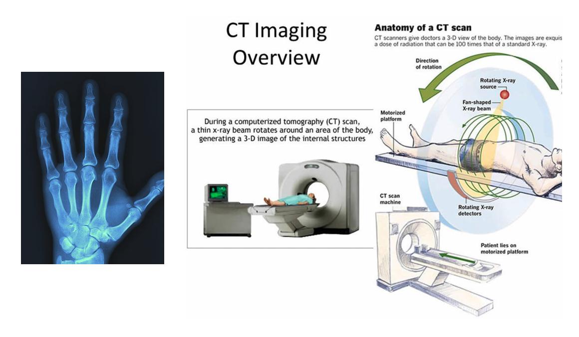 X-ray medical image